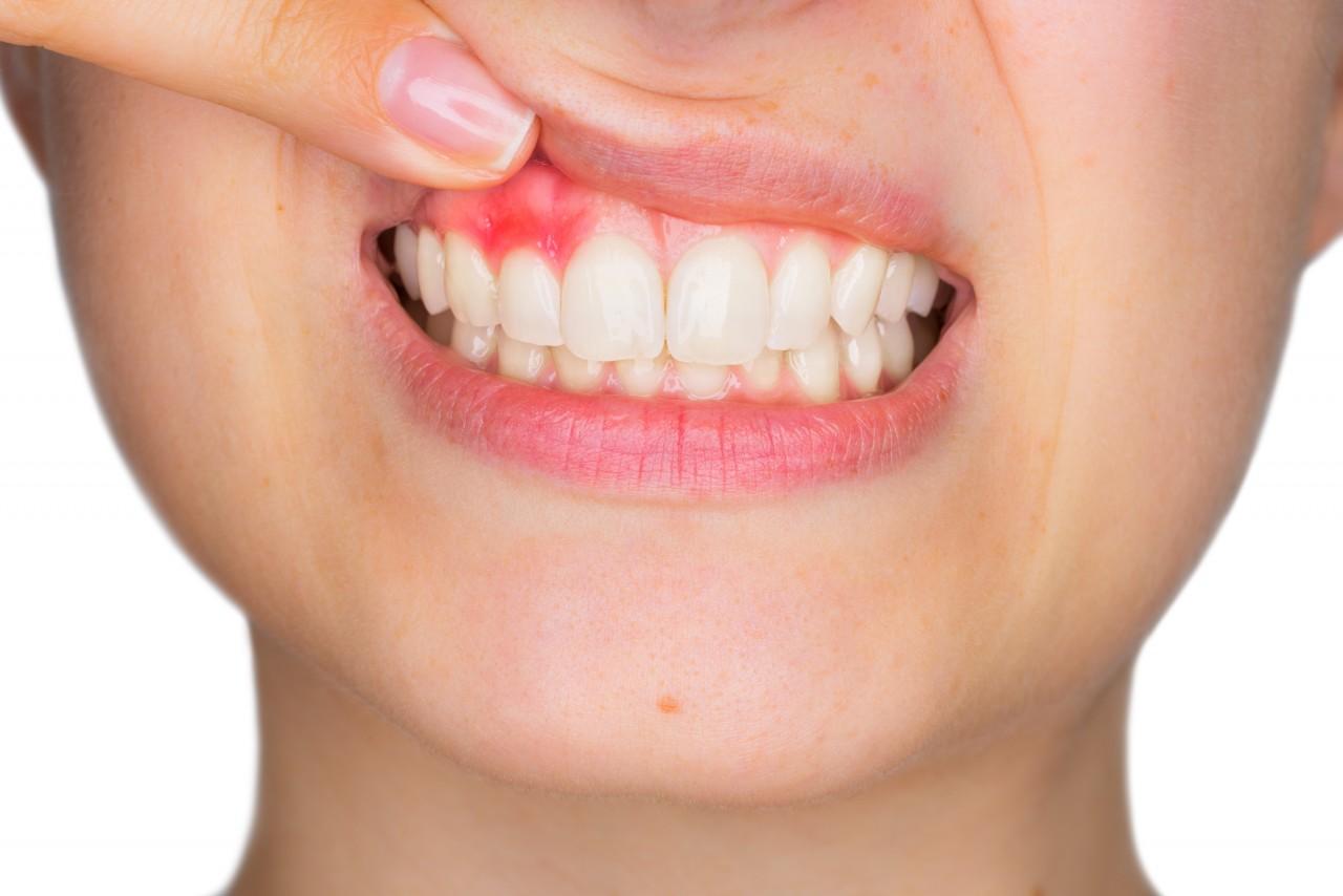 Vitamin C-Mangelzeichen Zahnfleischbluten