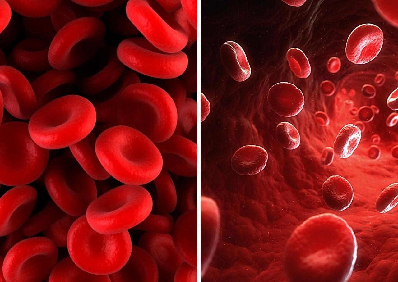 EISEN + EISEN-Mangel: Wurden diese Blutwerte bei Dir überprüft?